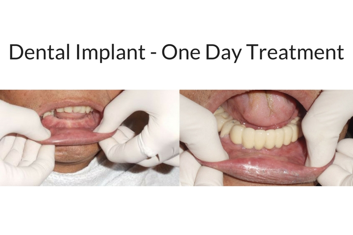 Tooth Implants in One Day