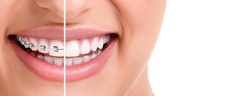 Orthodontics (Braces) Vs. Cosmetic Dentistry