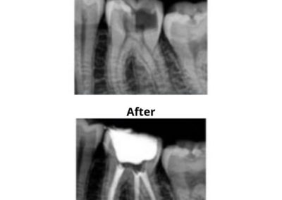 Fillings And Root Canal