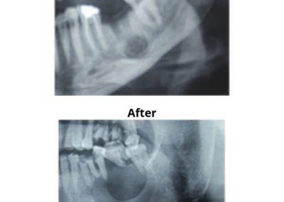 Osteomylitis